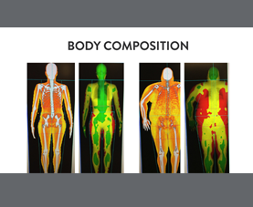 A slide on body composition that shows muscle mass vs body fat in 4 body types.
